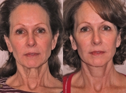 Facelift Patient - 4