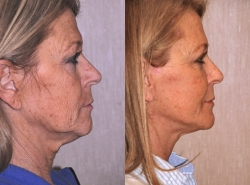 Facelift Patient - 2