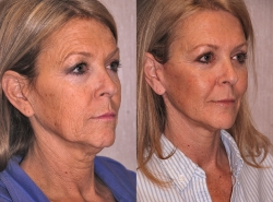 20792-Facial-fat-grafts-O.jpg