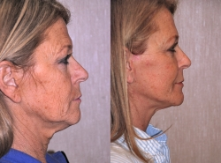 20792-Facial-fat-grafts-S.jpg