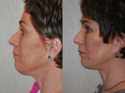2956-Facial-fat-grafts-S.jpg