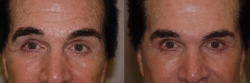 4231-Juvederm-to-forehead,-between-eyebrows,-crow's-feet-and-cheeks-F