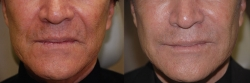 4231-Juvederm-to-forehead,-between-eyebrows,-crow's-feet-and-cheeks-L