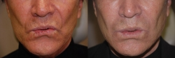 4231-Juvederm-to-forehead,-between-eyebrows,-crow's-feet-and-cheeks-M