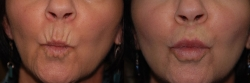 15390-before-upper-and-lower-lip-wrinkles-B