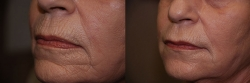15765-dermal-filler-to-chin-and-upper-lip-wrinkles-1