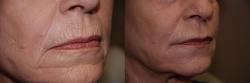 15765-dermal-filler-to-chin-and-upper-lip-wrinkles-2