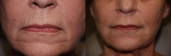 15765-dermal-filler--to-chin-and-upper-lip-wrinkles-3