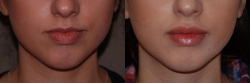 22109-dermal-filler-to-upper-lip