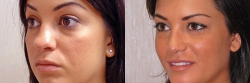 13519-nose-chin-implant-neck-liposuction-O.jpg