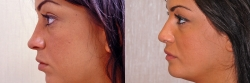 13519-nose-chin-implant-neck-liposuction-S.jpg